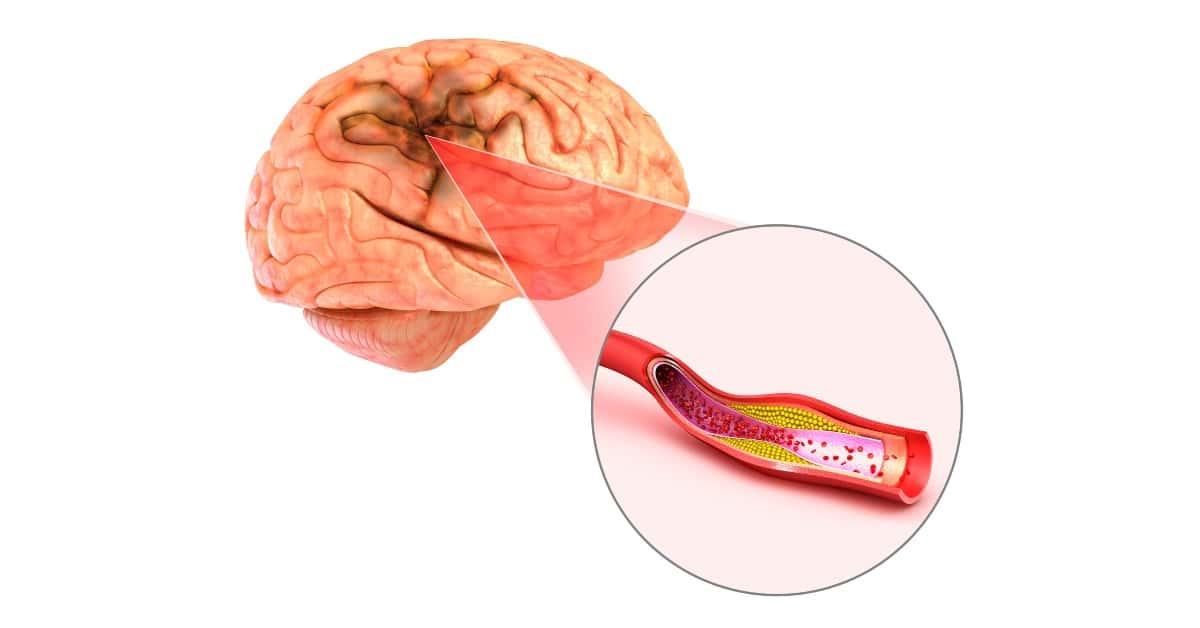 hogyan lehet kezelni az agy magas vérnyomását átlagos magas vérnyomás
