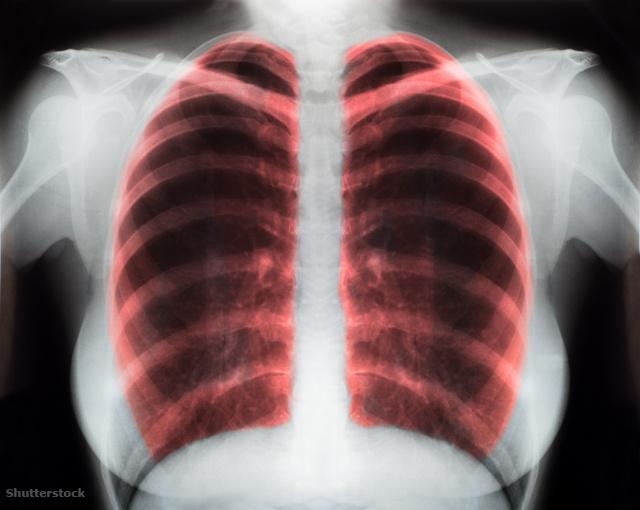 A kardiológusok ezeket a mozgásformákat ajánlják magas vérnyomás ellen