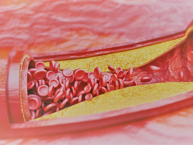 magas vérnyomás tabletta ideje magas vérnyomás vörös vizelet