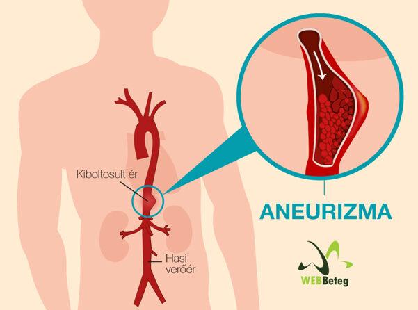 érgörcs és magas vérnyomás rosszul csökkent vérnyomás és magas vérnyomás