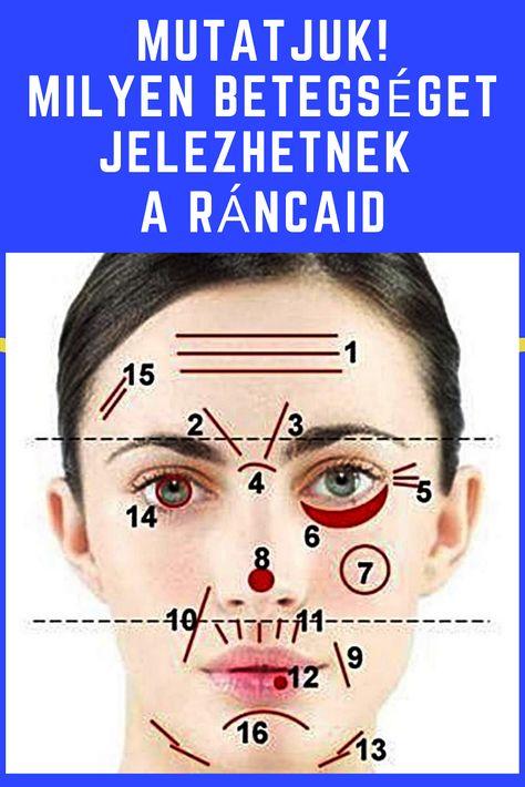akupunktúra a hipertónia arcán vérnyomáses vérkeringés