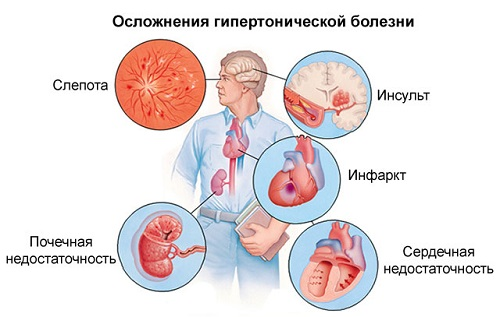 magas vérnyomás 2 fokozat 3 fok tanulmány a magas vérnyomás után