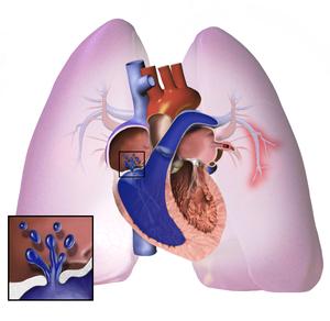 Új pulmonalis artériás hypertonia elleni gyógyszert engedélyezett az EMA