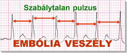 magas vérnyomás és ritmuszavar