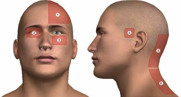 fejfájás magas vérnyomás okoz magas vérnyomás 30 év
