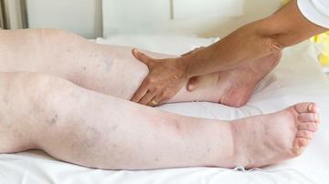 miért fordul elő ödéma magas vérnyomás esetén hirudoterápia hipertónia video pontokhoz