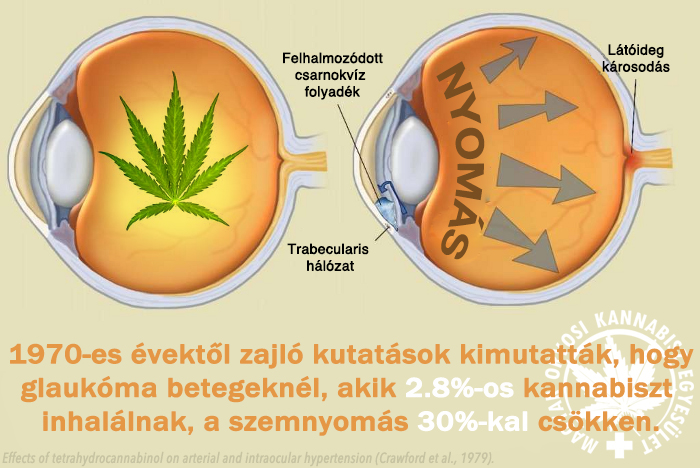magas vérnyomású glaukóma