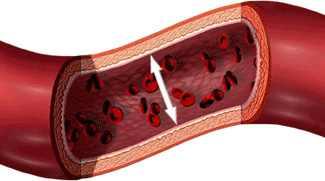 magas vérnyomás 3 stádiumú fogyatékosság