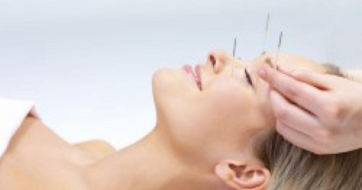akupunktúra a hipertónia arcán magas vérnyomás és puffadás