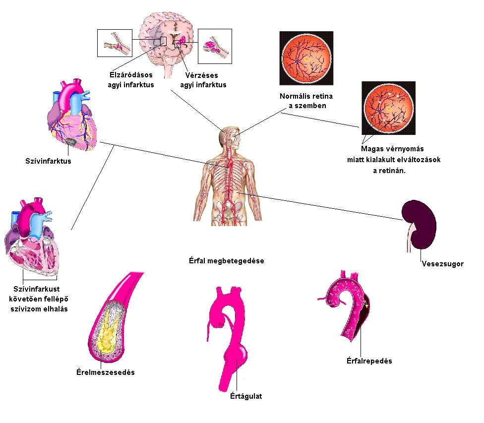 mi a veszélye a magas vérnyomással való koplalásnak nephrológiai hipertónia