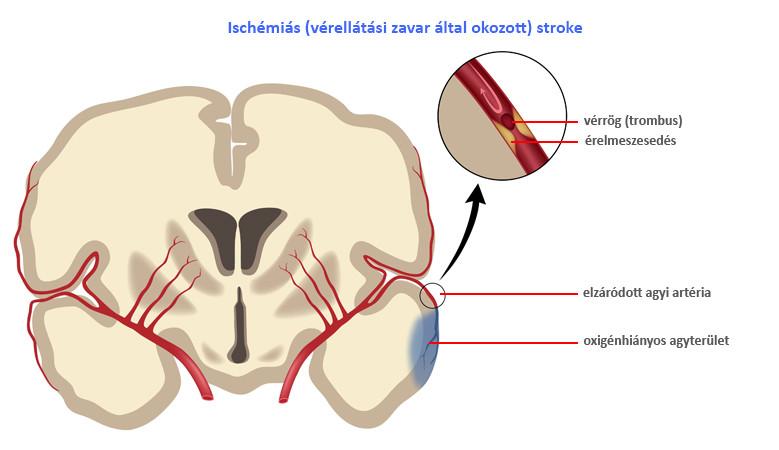 a magas vérnyomás mint a stroke fő oka magas vérnyomású aranyér