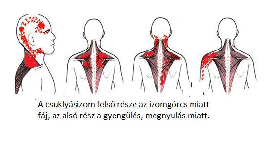 a nyak és a fej erek magas vérnyomásban napraforgó magas vérnyomás ellen