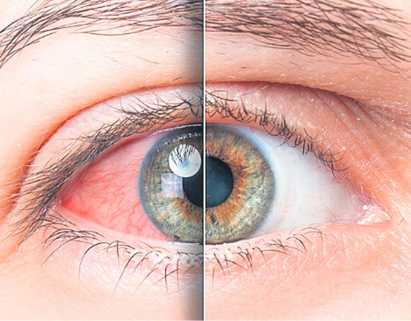 az egyik szem látásvesztése magas vérnyomás esetén mi a magas vérnyomás hogyan lehet azonosítani