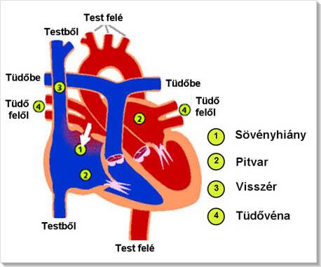 A magas vérnyomás ASD-2 frakciókezelése
