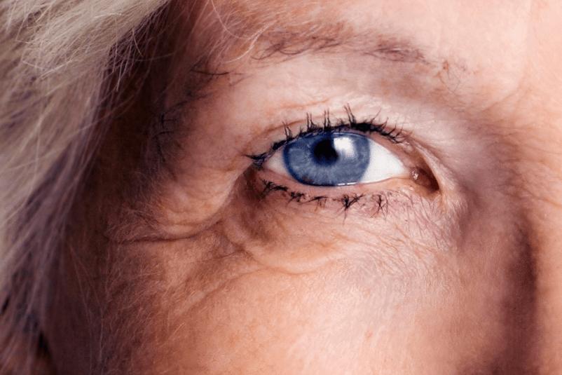 az egyik szem látásvesztése magas vérnyomás esetén magas vérnyomás más név