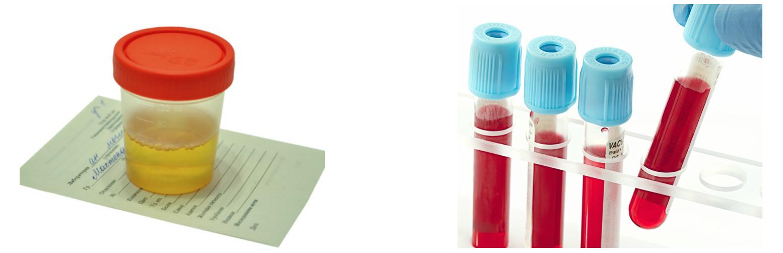 donor 2 fokozatú magas vérnyomásban