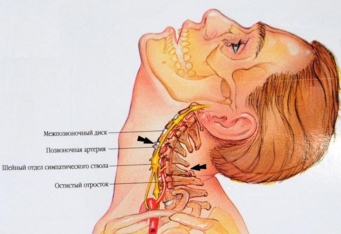 fájdalom a fej hátsó részében magas vérnyomás lehetséges-e egy kis magas vérnyomású bor