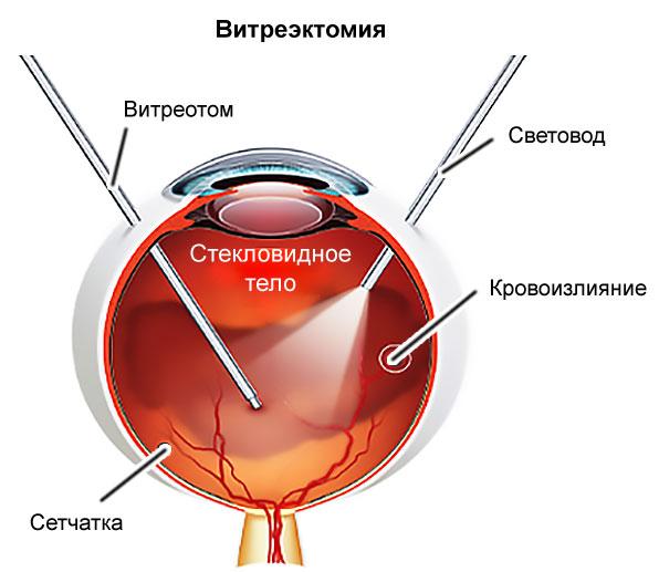 a magas vérnyomás triádja
