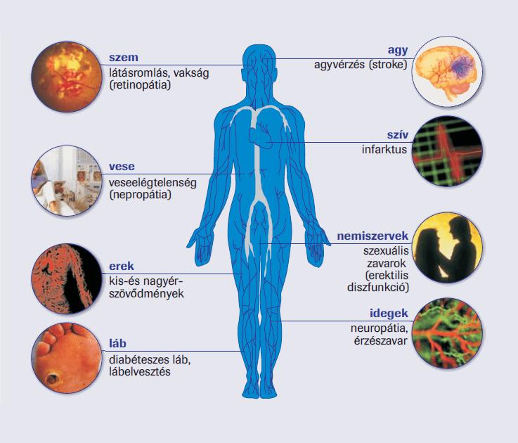 magas vérnyomás kockázata 4 mi ez magas vérnyomás kezeléssel foglalkozó klinika