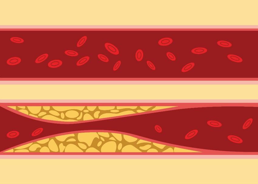 A hipertóniás válság következményei - Diagnostics