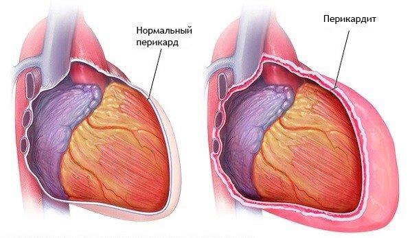 masszázs a cervicothoracicus régió magas vérnyomásához torna és magas vérnyomás