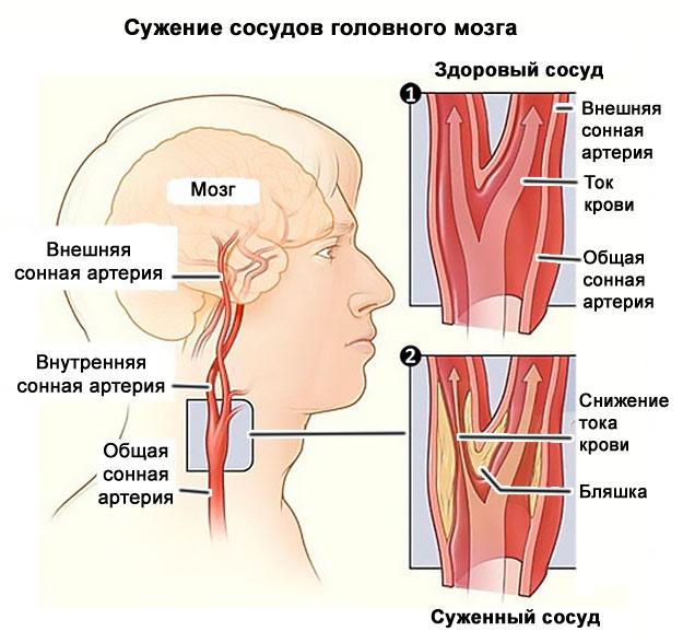 osteochondrosis és hipertónia gyógyszerek magas vérnyomás kezelésére 3 evőkanál