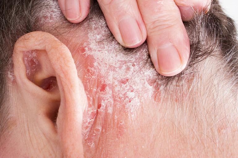 Ezek a betegségek társulhatnak a pikkelysömörhöz