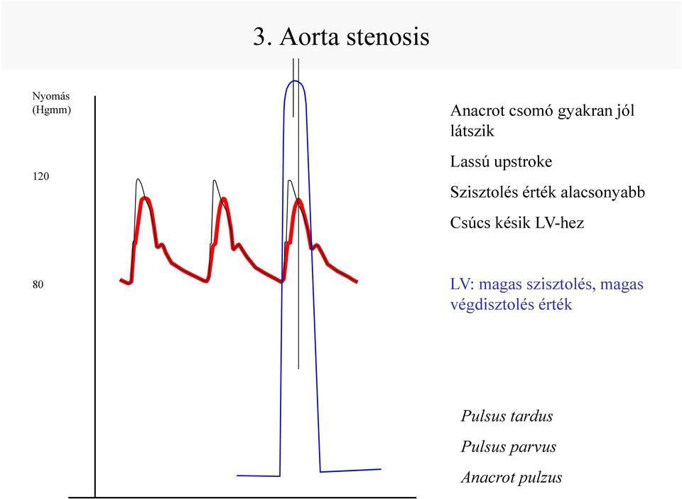 a hipertónia kórtörténete echo cs hipertónia esetén