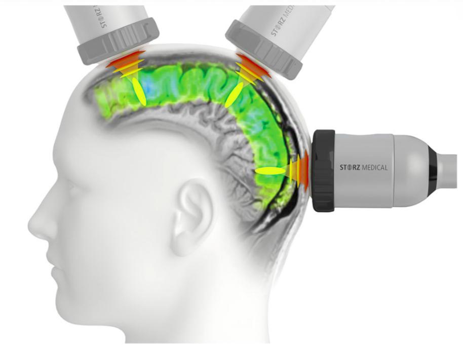 A szimulátor egy ellipszoid, amely edz. Elliptikus edző - mely izmok működnek