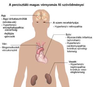 ASD cukorbetegség és magas vérnyomás esetén