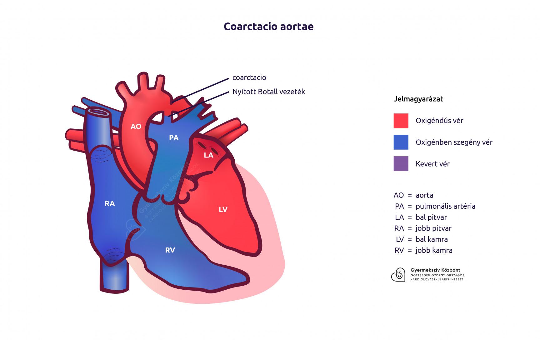 érdekes tények a magas vérnyomásról milyen fokú hipertónia a legsúlyosabb