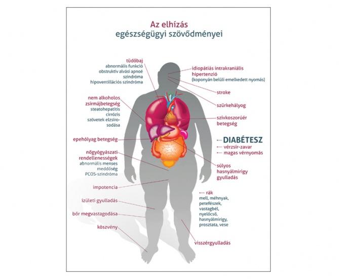 magas vérnyomás szövődmények külföldi gyógyszerek magas vérnyomás ellen